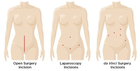 Hysterectomy Three Ways