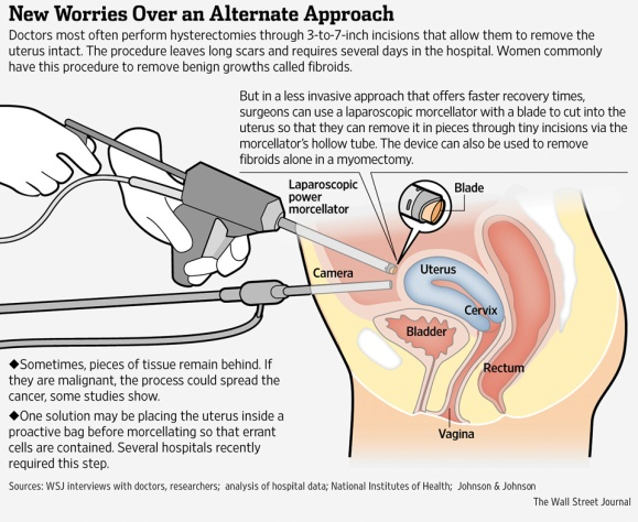 Morcellation Procedure Graphic_Wall Street Journal_2014-01-15