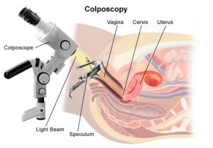 Colposcopy