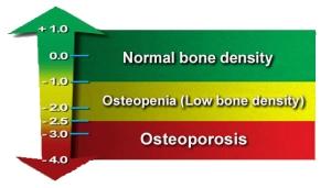 bone_density_chart