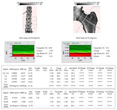 Sample Bone Density Results_Sydney